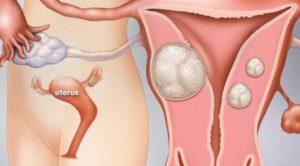 Tác động của u xơ tử cung tới phụ nữ có thai