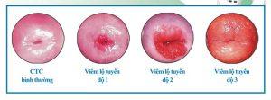 Hình ảnh viêm lộ tuyến cổ tử cung độ 3