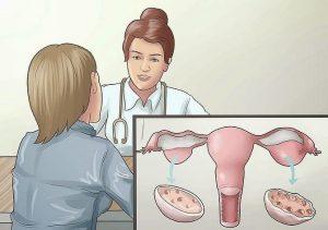 Triệu chứng đa nang buồng trứng