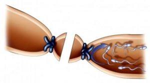 Thắt ống dẫn trứng có ảnh hưởng gì không