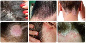 triệu chứng của bệnh nấm da đầu